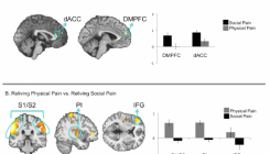Reliving Social pain vs Physical pain. A.-Social pain activates preferentially zones part of the affective component like the anterior cingulate cortex (dACC) and the dorsal medial prefrontal cortex (DMPFC), B.- meanwhile physical pain activates preferentially zones related with the sensory component like the secondary somatosensory cortices (S1/S2), the posterior insula or the inferior frontal gyrus (IFG). Adapted from Meyer et al., 2015